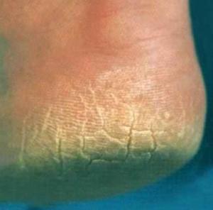 misfarvning af negle